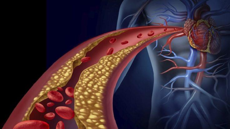 Мифы и правда об атеросклерозе