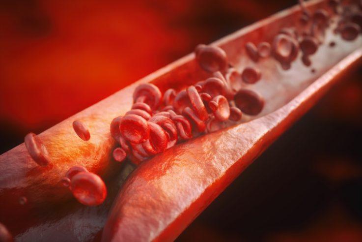 Что такое атеросклероз