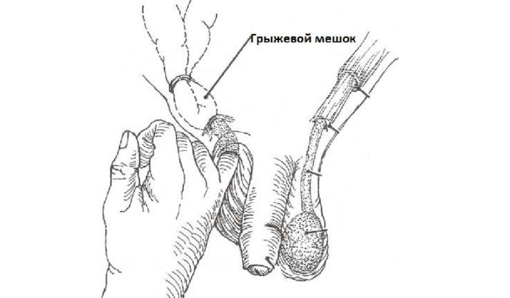Как проходит осмотр пациента с паховой грыжей