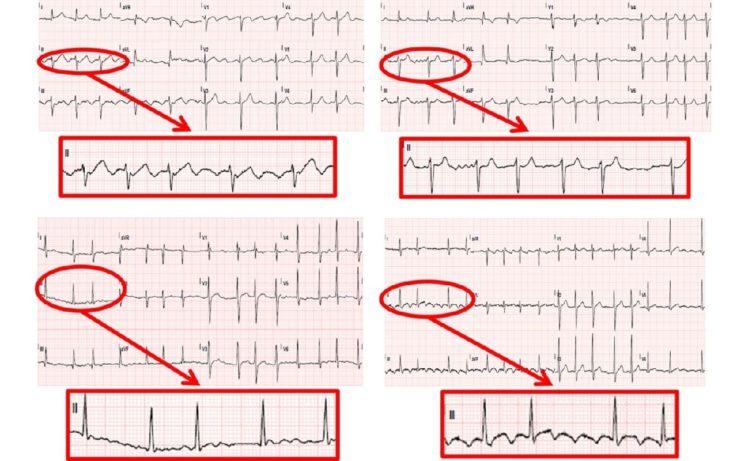 Электрокардиогамма при фибрилляции предсердий
