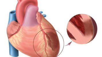 Что такое инфаркт миокарда?