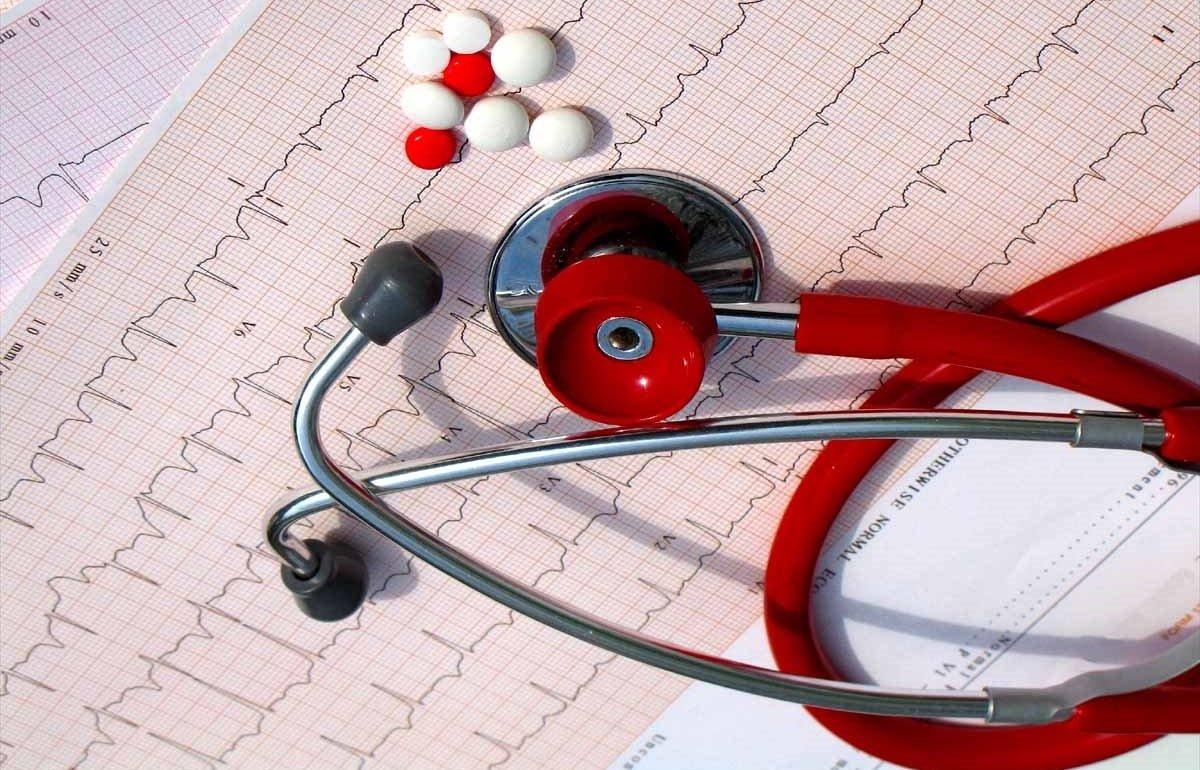 Противопоказания при мерцательной аритмии при санаторном лечении -