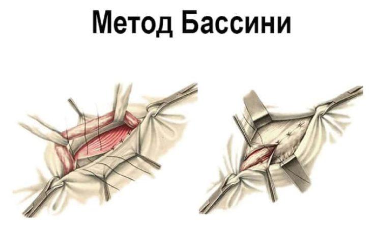 Хирургичекое лечение