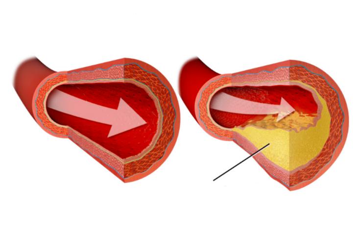 Патогенез инфаркта миокарда