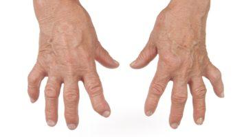 еформация суставов при ревматоидном артрите