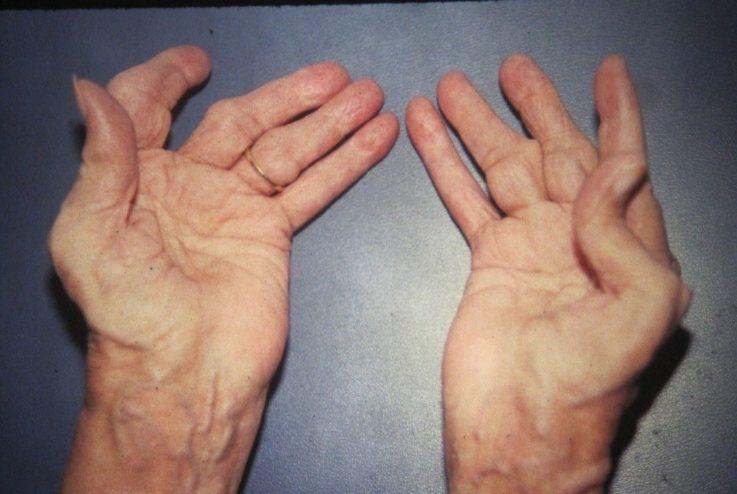 7 самых серьёзных деформаций суставов при ревматоидном артрите