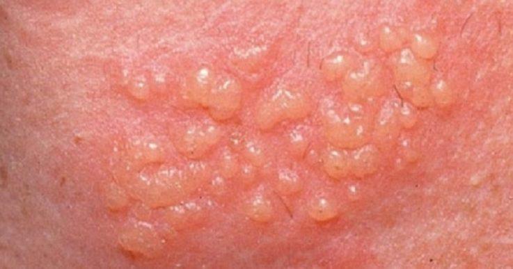 Как выглядит и проявляется генитальный герпес
