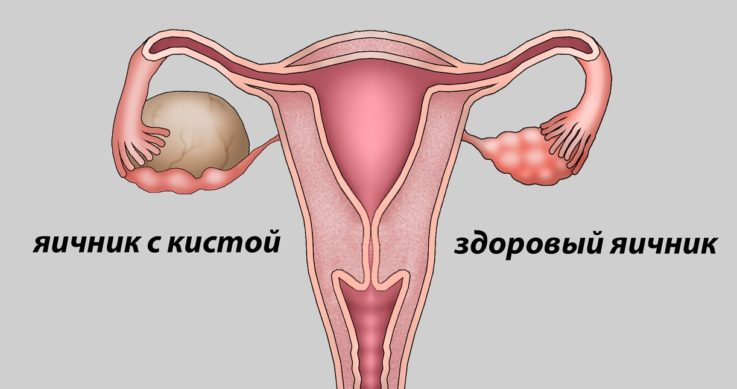 Причины образования кисты яичника