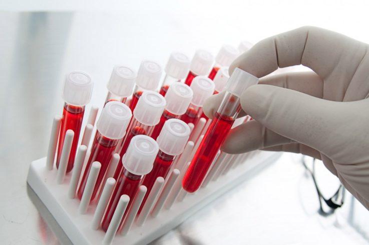 Антитела к цитруллиновому пептиду