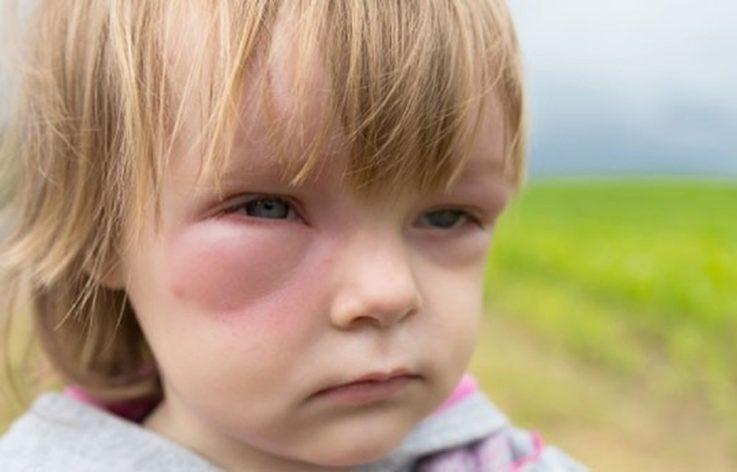 Причины и факторы риска у детей