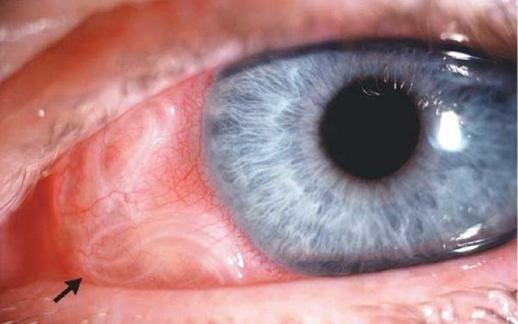 Глазная форма
