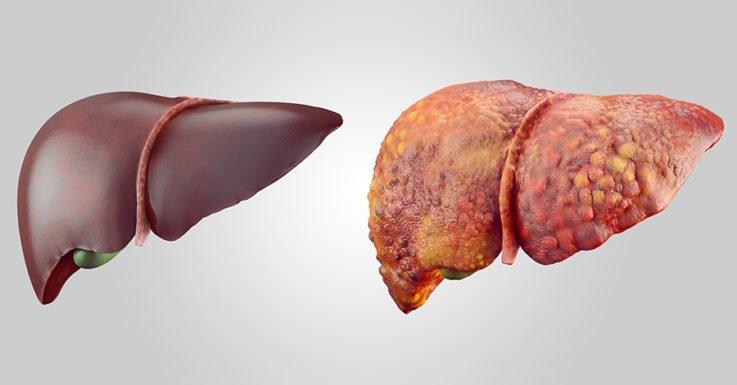 Что представляет собой цирроз печени?