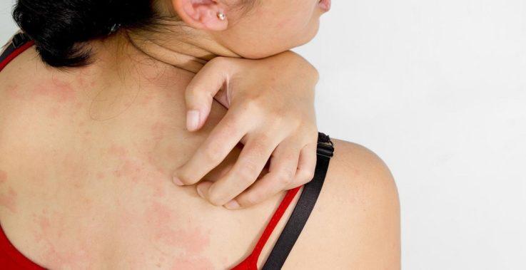Токсичность по отношению к коже