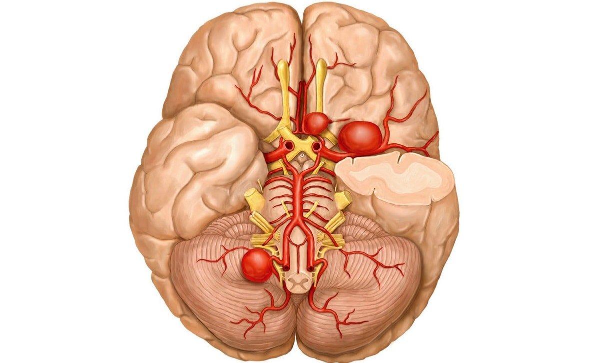 Разрыв аневризмы головного мозга - симптомы и последствия