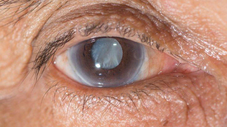 Разновидности катаракт