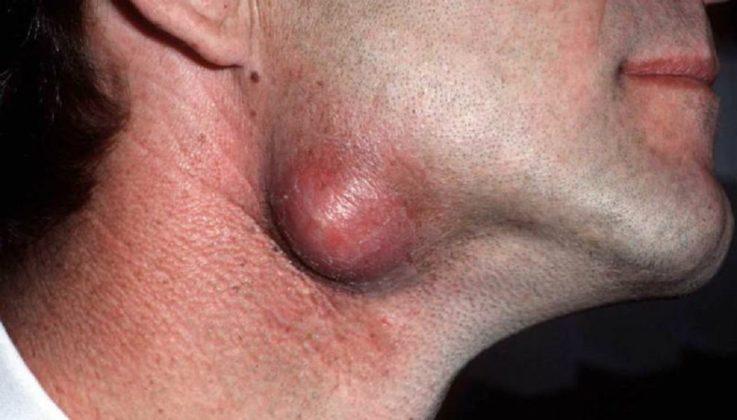 Дермоидная киста на шее