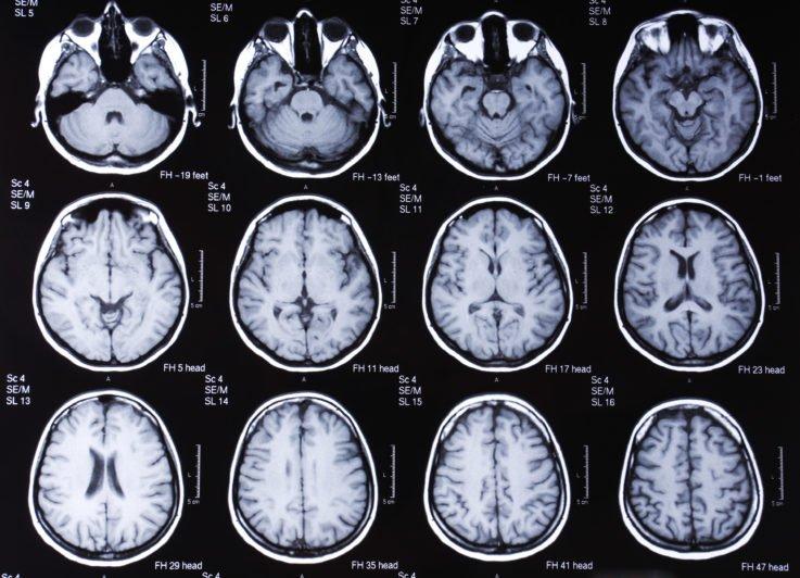 Метаболическая энцефалопатия