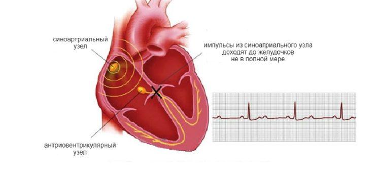 Аритмии, вызванные нарушением функции внутрисердечной проводимости.