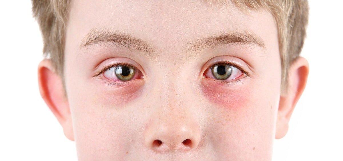 Что нужно знать и что делать если у ребенка аллергический конъюнктивит