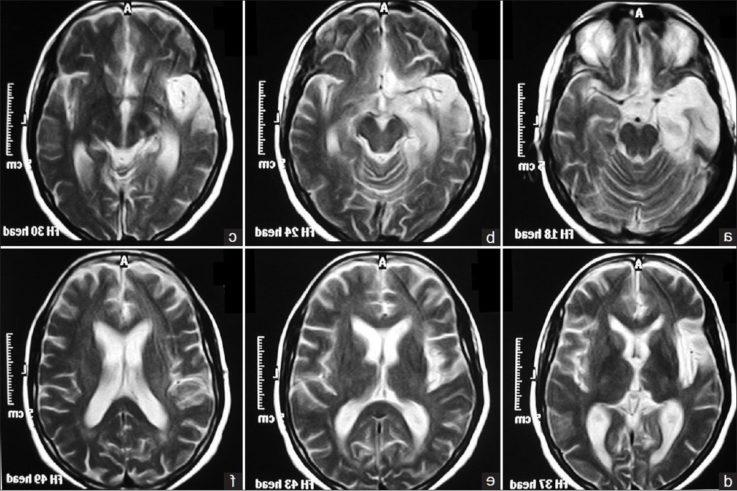 Диагностика энцефалопатий