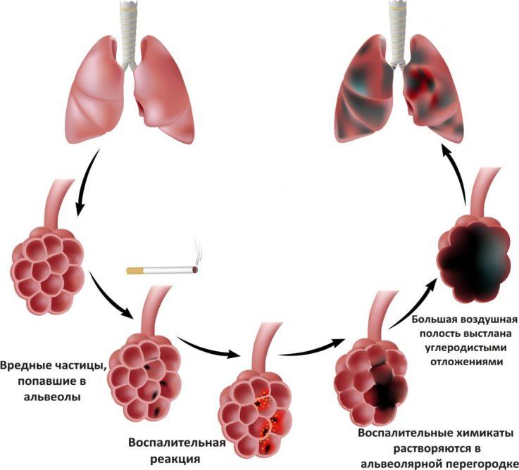 Почему возникает эмфизема лёгких