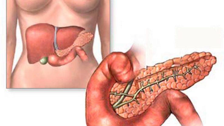 Панкреатит (воспаление поджелудочной железы)