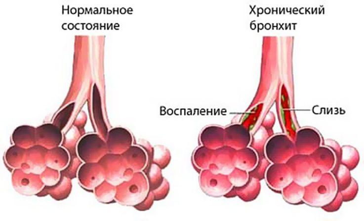 Механизм возникновения хронического бронхита