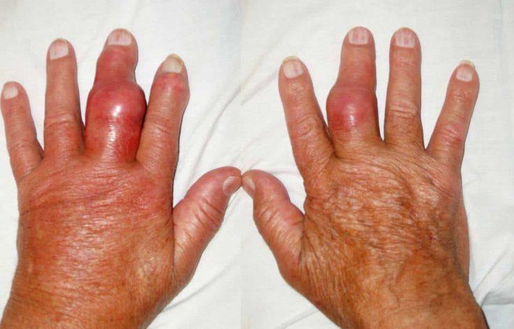 Заболевания, проявляющиеся полиартритом