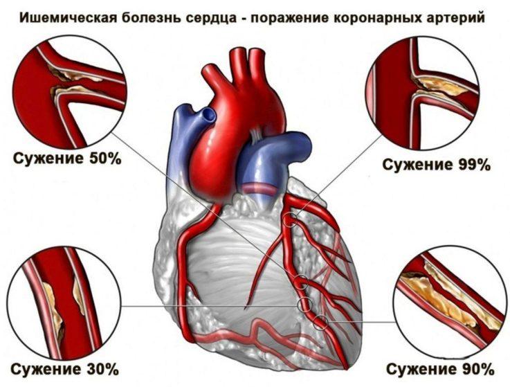 Виды стенокардии