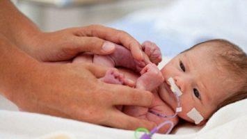 Некротический энтероколит новорожденных