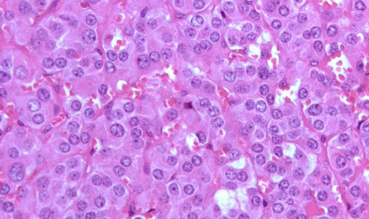 Клиническая картина нейрофиброматоза тип 1