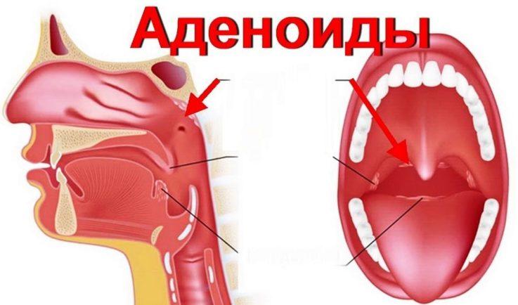 Что представляют собой аденоиды