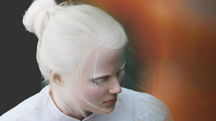 Девушка-альбинос