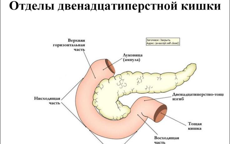 Что такое дуоденит