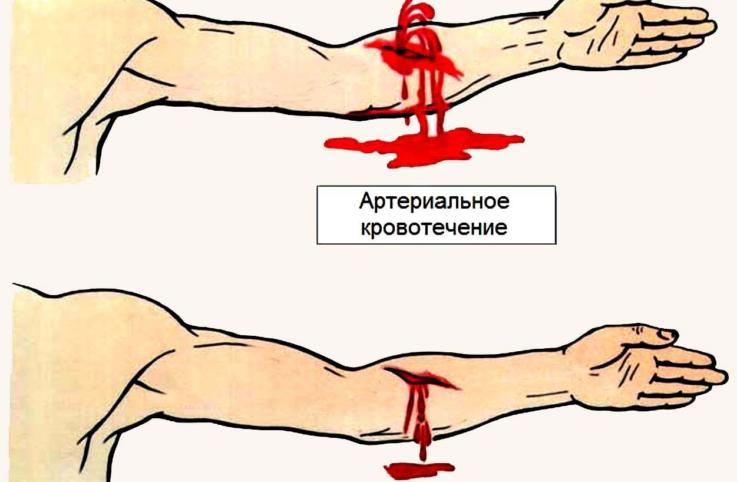 Что может привести к артериальному кровотечению