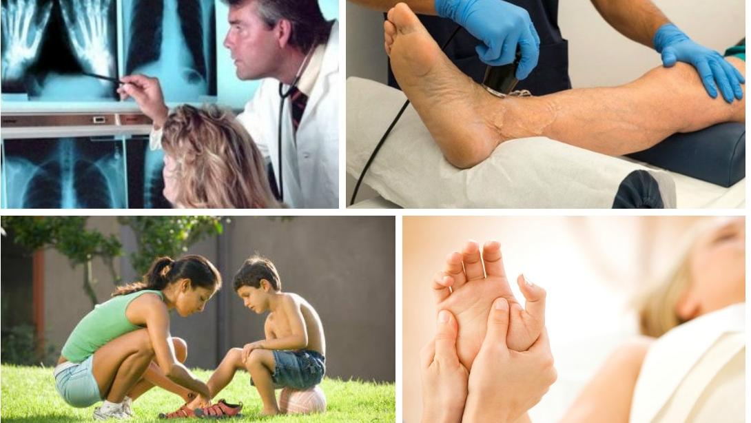 Ювенильный ревматоидный артрит клинические проявления диагностика лечебные мероприятия