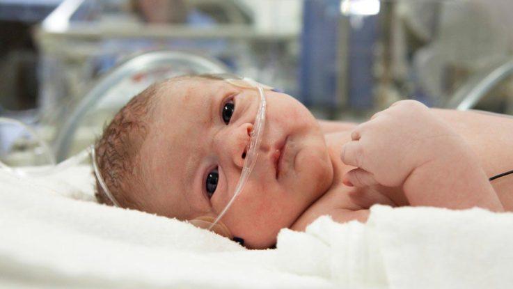 Асфиксия новорождённых