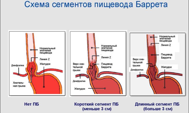 Осложнения, характерные для течения болезни