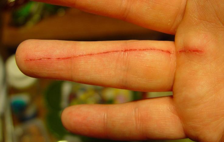 Лимфаденит при болезни кошачьих царапин