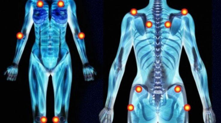 Причина возникновения фибромиалгии