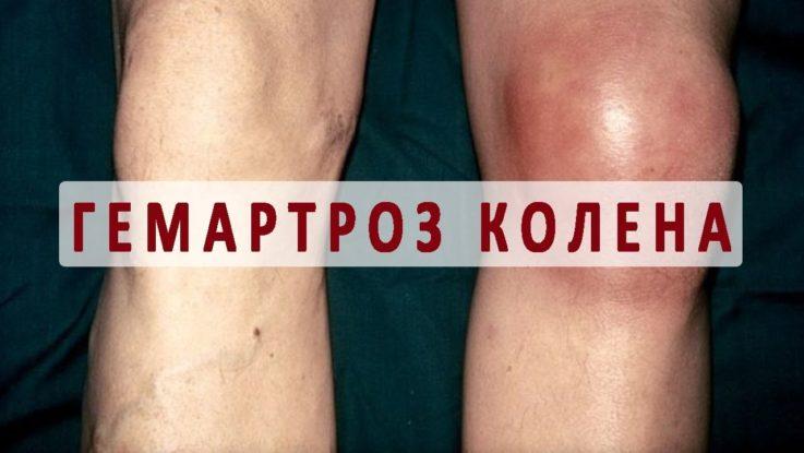 Симптомы гемофилии