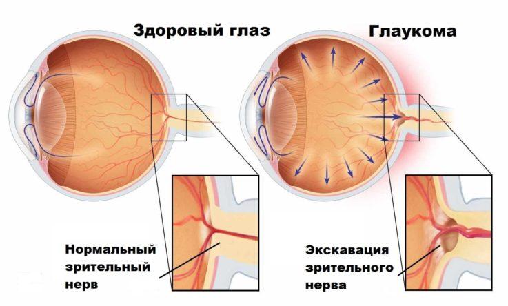 Классификация глаукомы