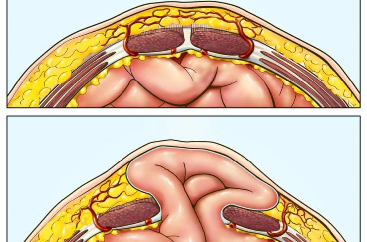 Механизм развития пупочной грыжи