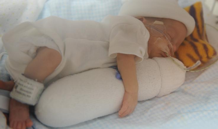 Классификация дистрофий у детей