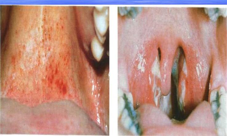 Лимфаденит при инфекционном мононуклеозе