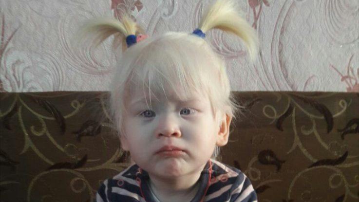 Симптомы альбинизма
