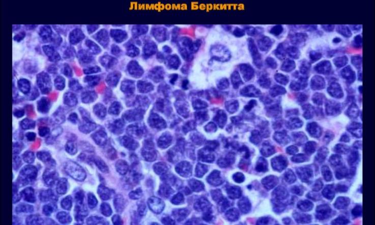 Лимфаденит при неходжкинских лимфомах