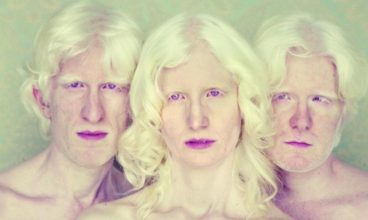 Типы альбинизма