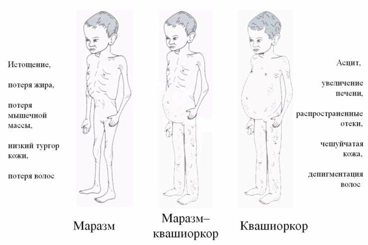 Симптомы дистрофии у детей