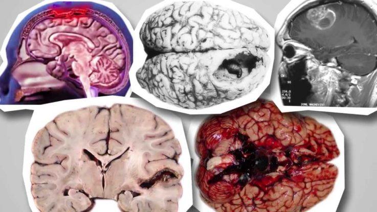 Откуда берется киста в головном мозге